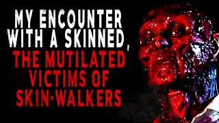 """""""My Encounter with a Skinned the Mutilated Victims of SkinWalkers""""   Creepy Pasta Storytime"""