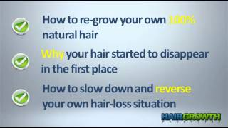 Male Baldness Cure - Best Cure for Male Baldness