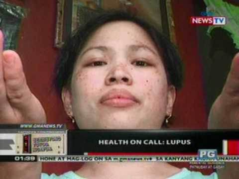 OC:  Health On Call: Lupus