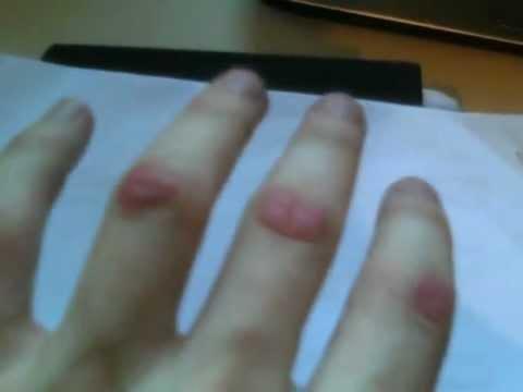Horrible finger biting habit
