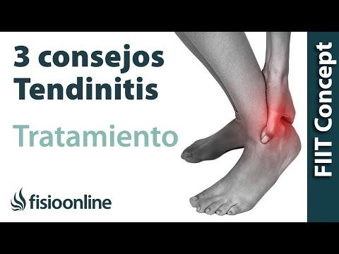 ... 3 aspectos fundamentales que debes conocer acerca de la tendinitis y el  tratamiento más ideal para emplear en caso de presentar esta patología. 6aa40d82117b