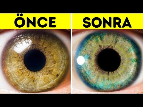 Göz Renginizi Değiştirebilecek 7 Şey