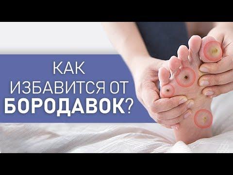 Как УДАЛИТЬ подошвенные БОРОДАВКИ. Причины появления и лечение. Советы дерматолога.