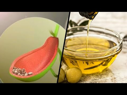 how-to-remove-gallstones-naturally-home-remedies-to-remove-gallstones
