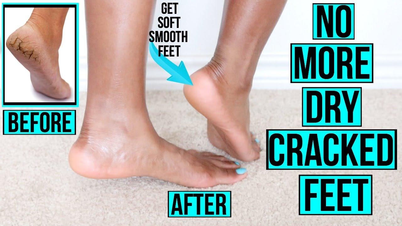 How To Get Rid Of Dry Cracked Feet Fast Naturally At Home Remedies More