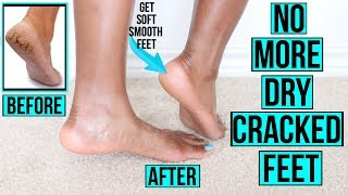 How Get Rid Dry Ed Feet Fast Naturally