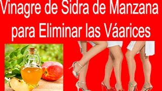 Venas tratar varicosas vinagre sidra de manzana las de