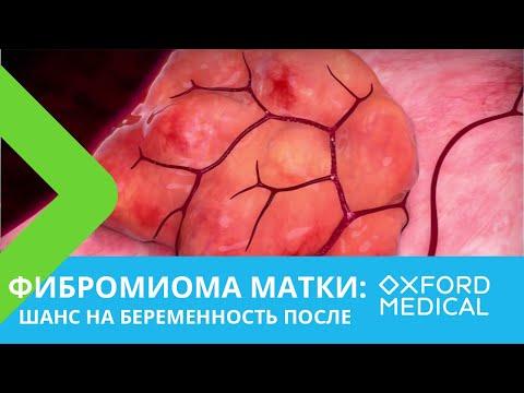 Фибромиома. Шанс на беременность ПОСЛЕ.