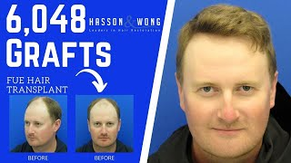 FUE HAIR TRANSPLANT 6048 GRAFTS! | HASSON AND WONG TESTIMONIAL