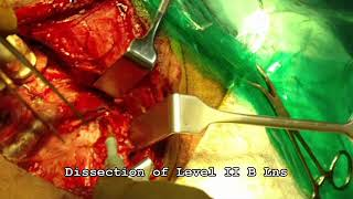 NECK DISSECTION WITH WIDE LOCAL EXCISION OF TONGUE CARCINOMA 01 17