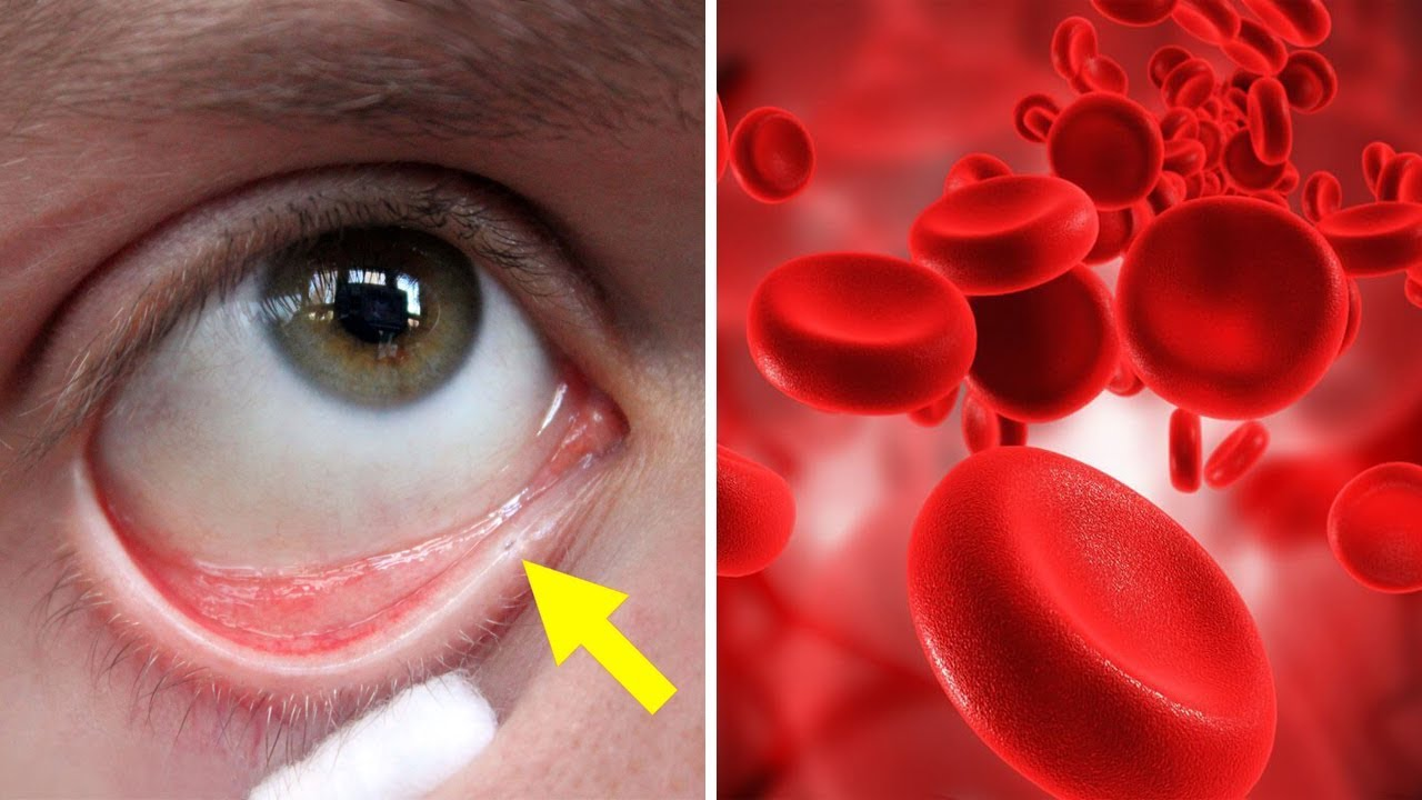 8 Signs of Anemia You Shouldn't Ignore