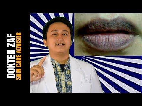 bibir-hitam---inilah-penyebab-bibirmu-hitam-dan-cara-menghilangkannya