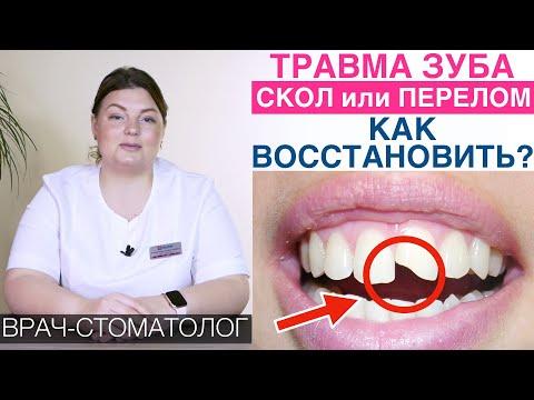 Травма зуба - как восстановить зуб виниром, внутрикультевой вкладкой и коронкой