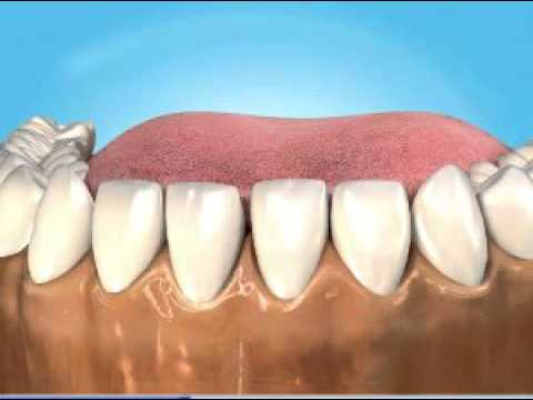Splinting - loose teeth - YouTube