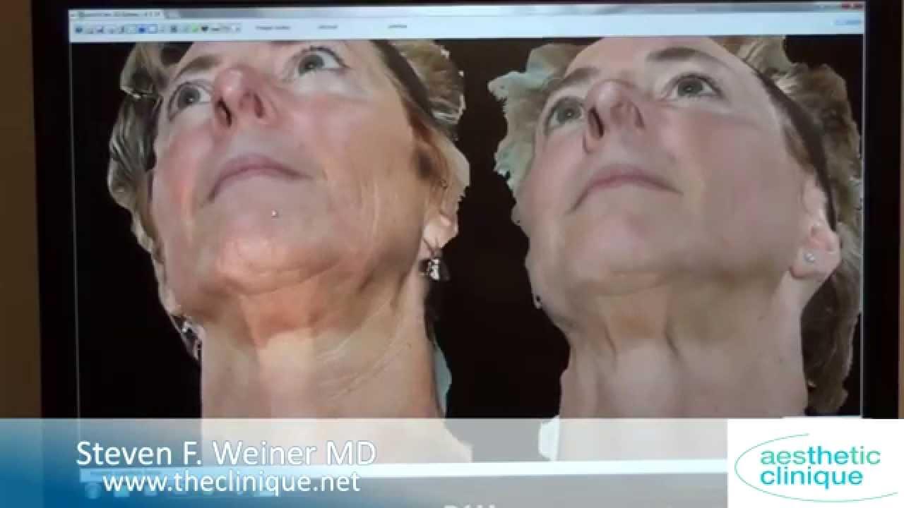Infini RF Skin Tightening, fine lines, wrinkles, scars