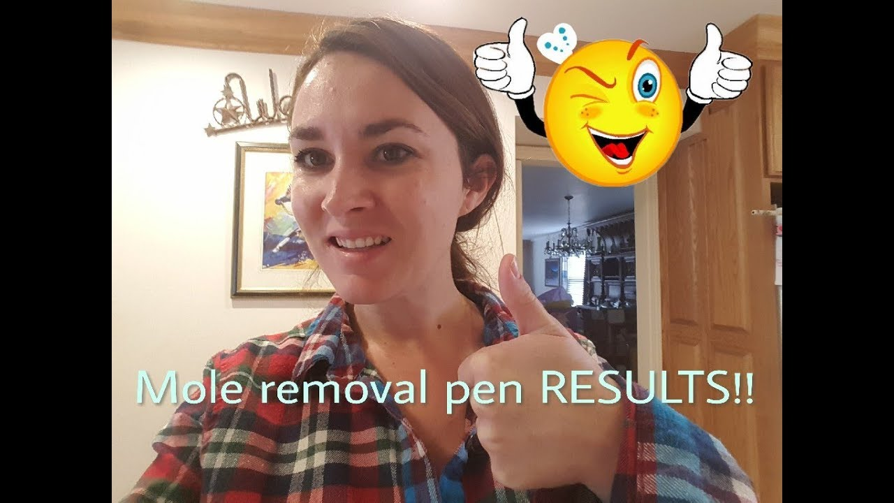 Results Of The Skin Spotmole Tattoo Removal Pen 1 Week Later Youtube