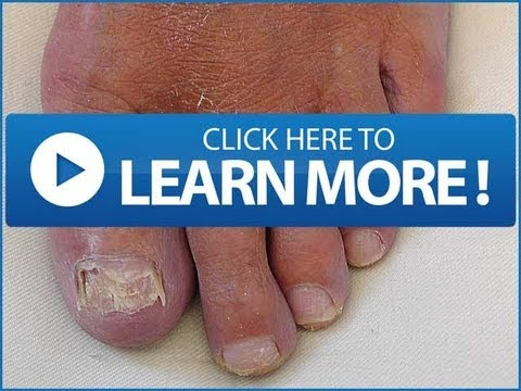 NAIL FUNGUS Home Remedy | Best Home Nail Fungus Treatments You Have To Know