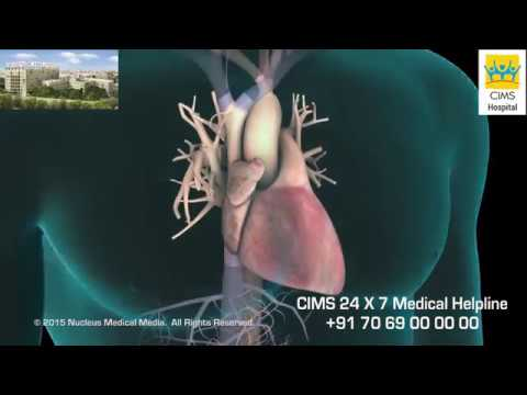 Implantable Cardioverter Defibrillator ICD (Hindi) - CIMS Hospital