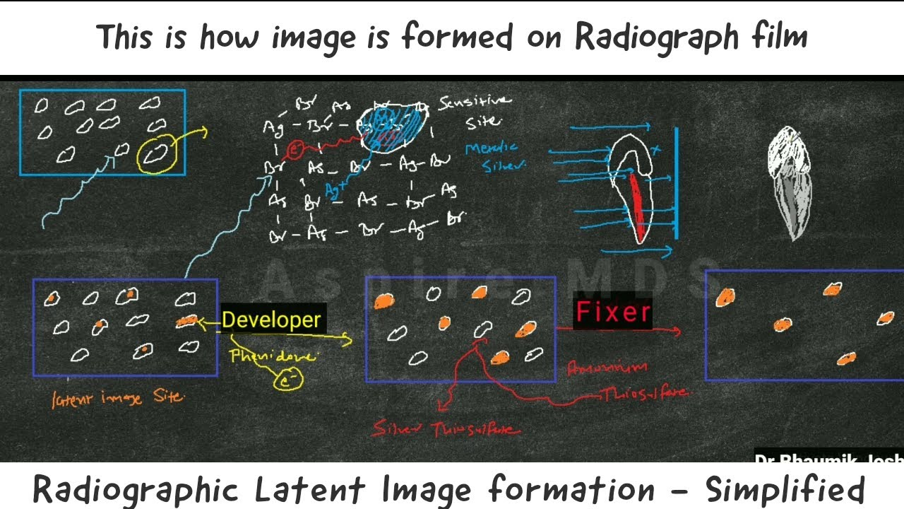 Radiographic Latent Image Formation Aspire Mds Neet Aiims Mds Youtube