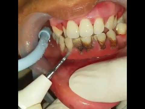 Teeth Plaque Removal