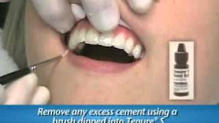 lumineers procedure.flv
