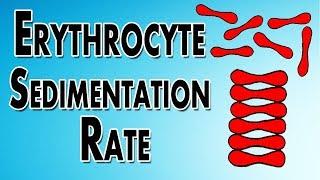 Erythrocyte Sedimentation Rate explained