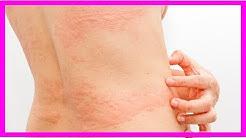 3 natürliche Mittel zur Beruhigung von Nesselsucht