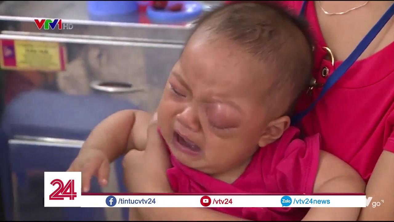 Cảnh báo biến chứng do điều trị đau mắt cho trẻ sai cách  – Tin Tức VTV24
