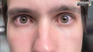 नार्मल नहीं है आँखों में कीचड़ आना, यहाँ जानें उपाय   Conjunctivitis   Remedies  