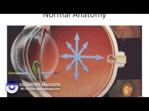 Iridotomia Periferica Laser Youtube