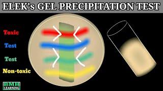 Elek's Gel Precipitation Test | Elek' Test | Corynebacterium Diptheriae Gel Precipitation Test | Resimi