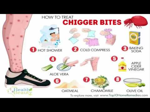 how to treat chigger bites youtube. Black Bedroom Furniture Sets. Home Design Ideas