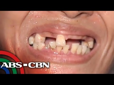 How poor dental hygiene can lead to other health problems