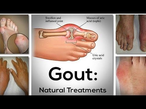 [GOUT TREATMENT] How Cure Gout Fast At Home With Lemon - Home Natural Remedies For Gout   Health 24H