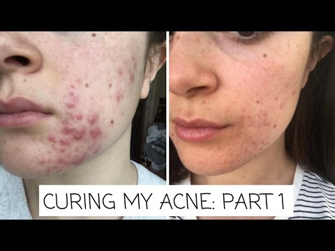 CURING MY ACNE: PART 1 (DIET)