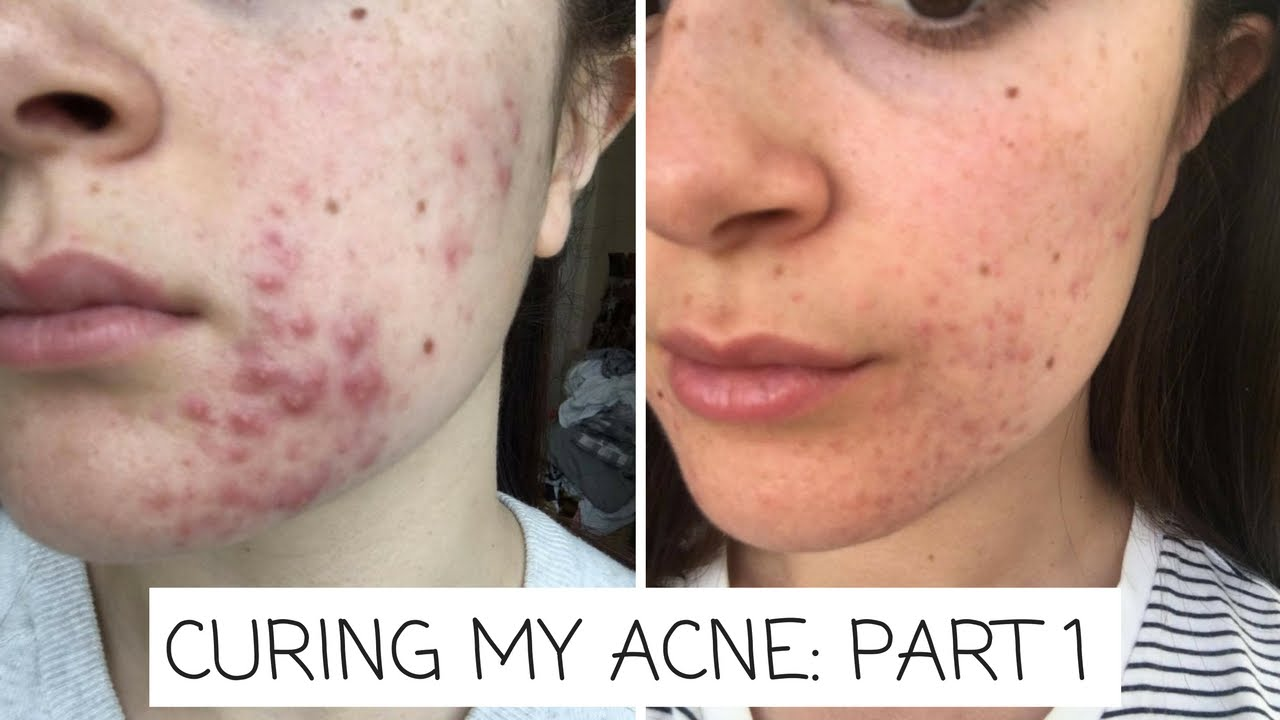 Hormonal Acne: New Science on How to Beat It – Keto for Women