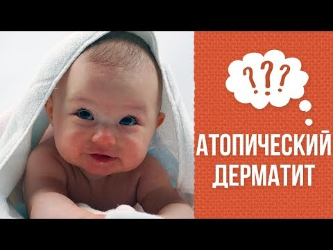Экзема: разновидности, стадии развития и фото болезни