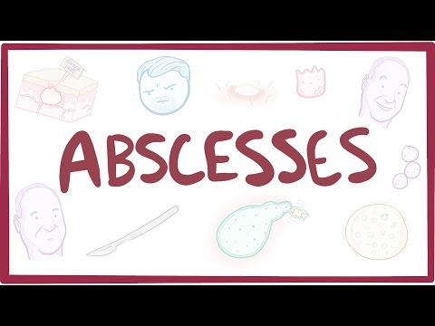4 Incredible Home Remedies for Abscesses