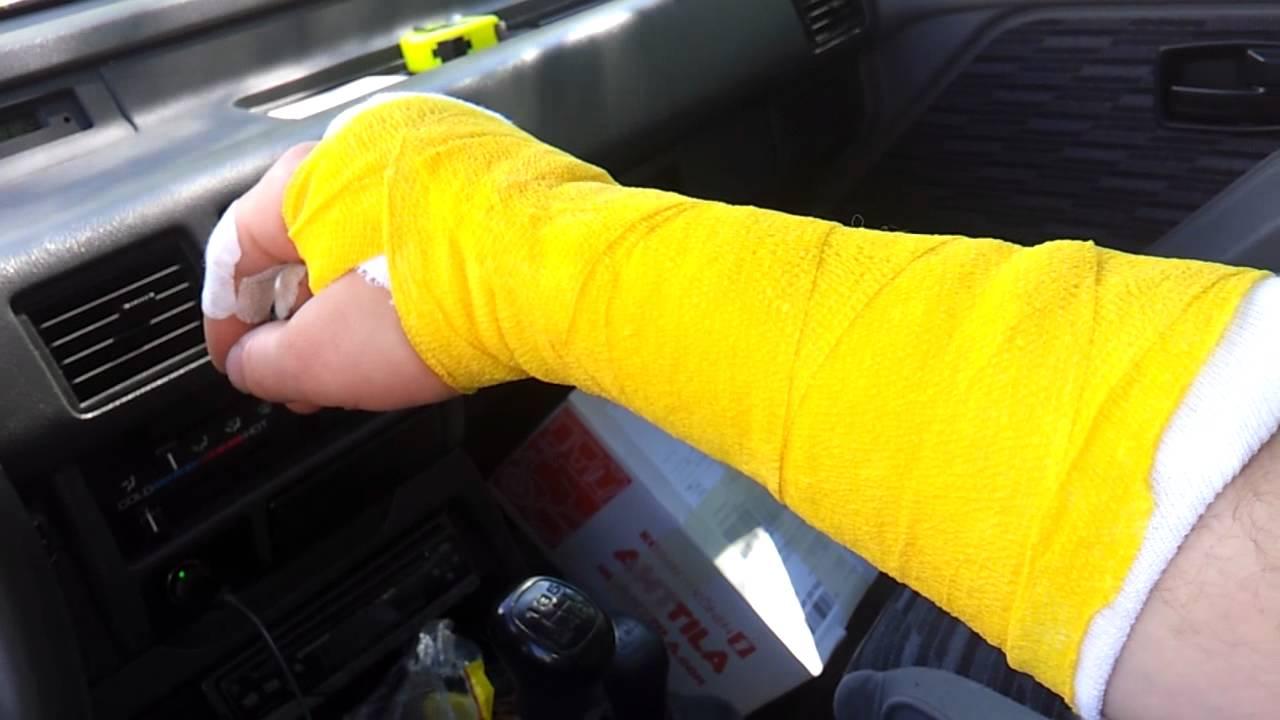 Murtunut Käsi