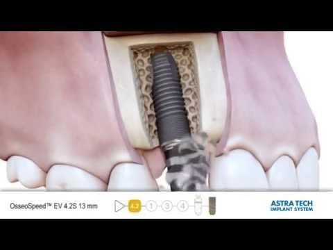 Имплантация зубов системой Astra Tech