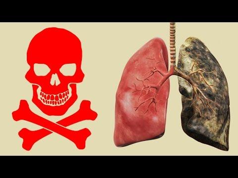 14 Harte Fakten über Rauchen !