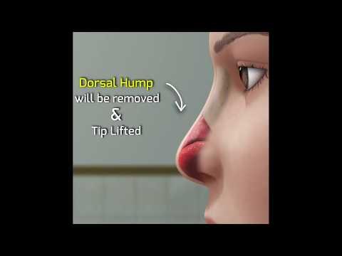 Rhinoplasty Surgery Animation