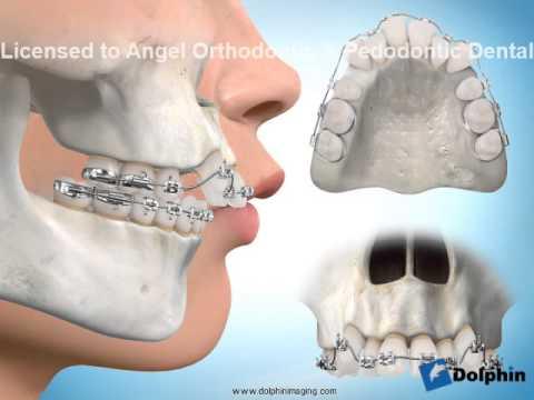 矯正治療・出っ歯(歯を抜く治療...