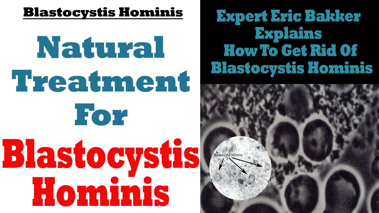 Natural Treatment for Blastocystis Hominis