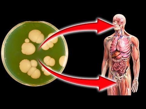 ОПАСНЫЙ ГРИБОК и КАК ЛЕГКО ВЫЯВИТЬ ГРИБЫ в организме 🌳 Здоровье