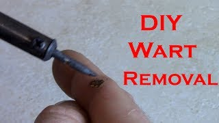How to remove a wart at home with a soldering iron.