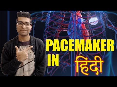 Pacemaker in hindi