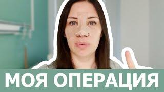 РИНОСЕПТОПЛАСТИКА операция на носу МОЙ ОПЫТ и НОВЫЙ НОС