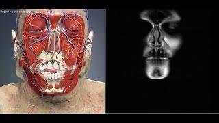 Компьютерная томография головы и головного мозга / CT head coronal model(Компью́терная томогра́фия головы и головного мозга — метод неразрушающего послойного исследования внутр..., 2015-03-25T08:49:11.000Z)