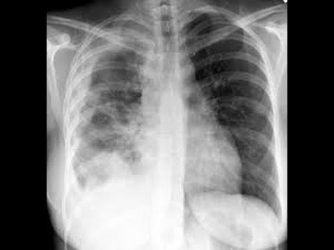 Mesothelioma lawyer and mesothelioma law firm   The complete guide